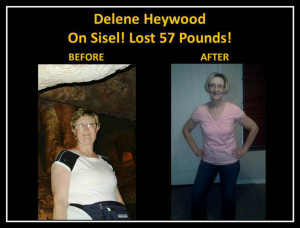 Before & After Delene Heywood